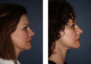 mini face lift before and after