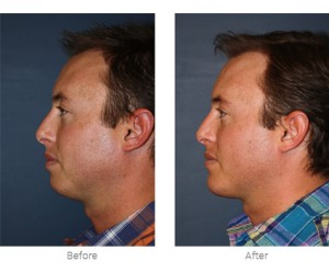chin surgery before and after