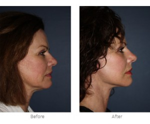 Before And After A Mini Facelift from Smith Cosmetic Surgery