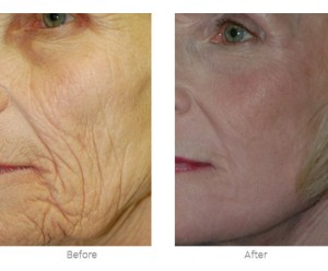 laser resurfacing before and after