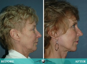 Denver Mini Facelift Surgery | Smith Cosmetic Surgery