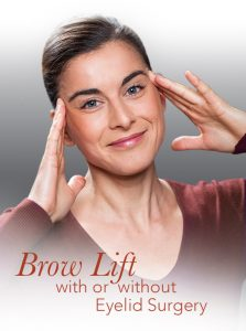 graphic representation of a brow lift