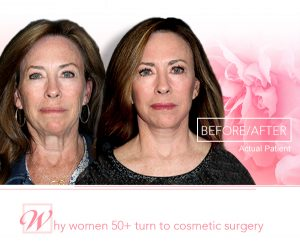 before and after photo of woman who had facelift