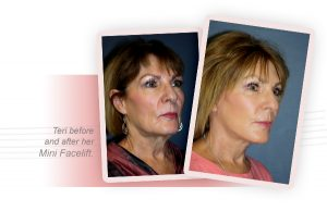 smith cosmetic surgery patient mini facelift before and after